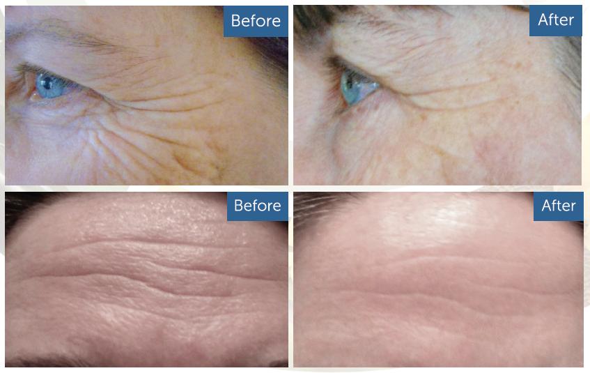 best cream for forehead wrinkles